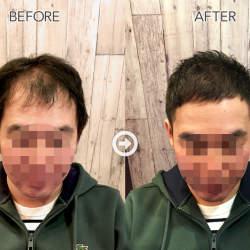 【プロが監修】ハゲる前に読む! 薄毛をカバーできるヘアスタイル&アレンジテク