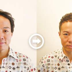【プロが監修】薄毛をカバーできる髪型に変身!ハゲのタイプ別ヘアカタログ「広くなったおでこ」