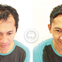 【プロが監修】薄毛をカバーできる髪型に変身!ハゲのタイプ別ヘアカタログ「深いM字ハゲ」