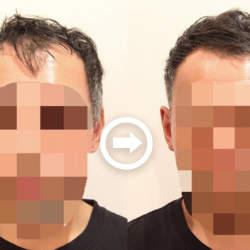 【プロが監修】薄毛をカバーできる髪型に変身!ハゲのタイプ別ヘアカタログ「前髪だけ伸びたM字ハゲ」