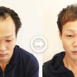 【プロが監修】薄毛をカバーできる髪型に変身!薄毛のタイプ別ヘアカタログ「M字ハゲ」