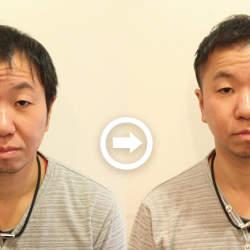 【プロが監修】薄毛をカバーできる髪型に変身!ハゲのタイプ別ヘアカタログ「全体的に薄くなった髪」