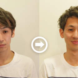 【プロが監修】薄毛をカバーできる髪型に変身!ハゲのタイプ別ヘアカタログ「広いおでこ」