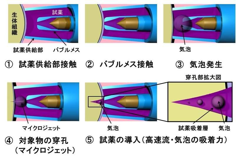 全く痛くない「針なし注射」を日本の大学が開発! これで注射の恐怖から開放される 3番目の画像