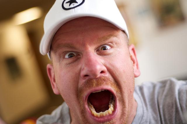 """「口の中が肛門よりも汚い」とあなたは知っているだろうか? 歯科医が教える""""衝撃の事実"""" 1番目の画像"""