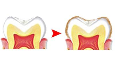 なぜ仕事ができる人は「歯が白い」のか? 歯を白くする4つの基本と意外な食べ物 4番目の画像