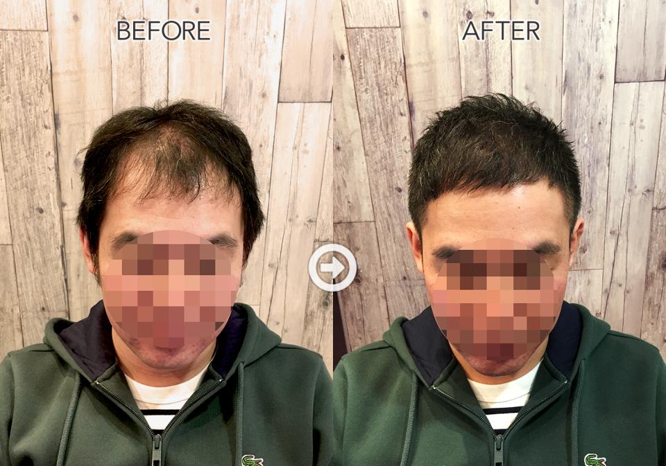 【プロが監修】ハゲる前に読む! 薄毛をカバーできるヘアスタイル&アレンジテク 1番目の画像