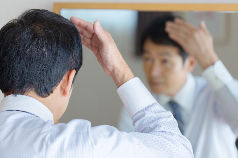 """2026年には日本が""""世界の薄毛ランク""""1位に? 国別「食生活」と「薄毛」の関係性 1番目の画像"""