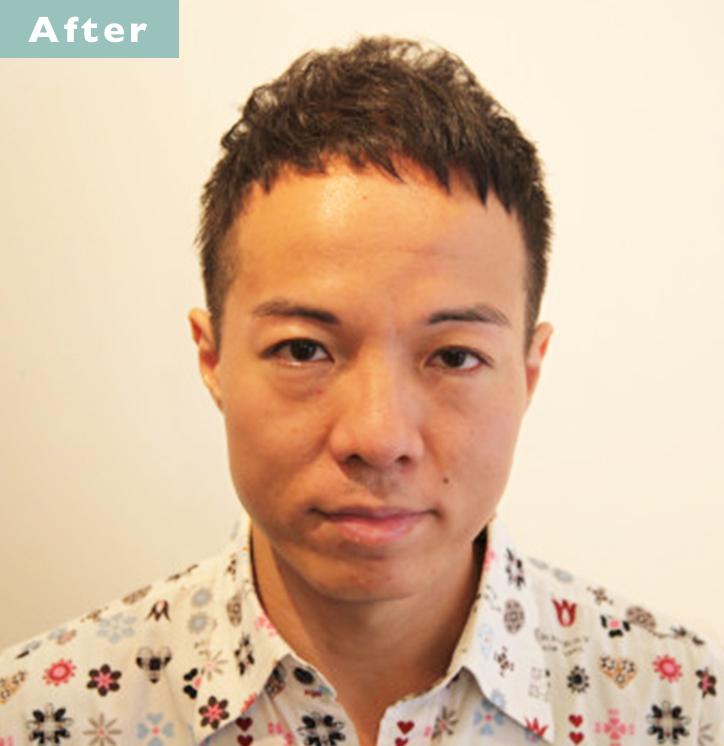 【プロが監修】薄毛をカバーできる髪型に変身!ハゲのタイプ別ヘアカタログ「広くなったおでこ」 3番目の画像