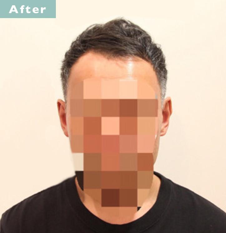 【プロが監修】薄毛をカバーできる髪型に変身!ハゲのタイプ別ヘアカタログ「前髪だけ伸びたM字ハゲ」 3番目の画像