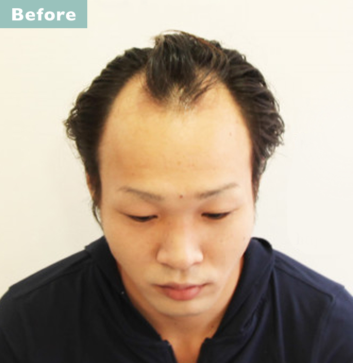 【プロが監修】薄毛をカバーできる髪型に変身!ハゲのタイプ別ヘアカタログ「M文字ハゲ」 2番目の画像