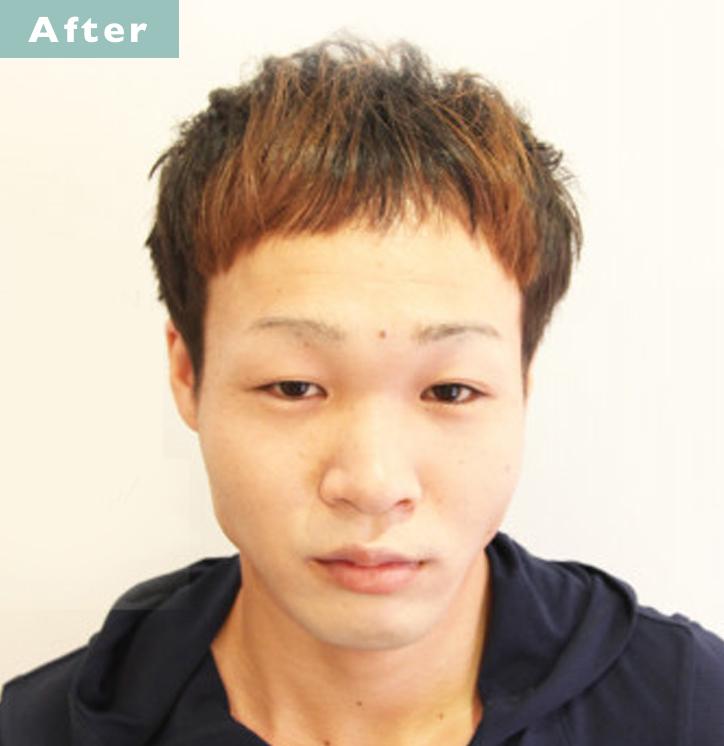 【プロが監修】薄毛をカバーできる髪型に変身!ハゲのタイプ別ヘアカタログ「M文字ハゲ」 3番目の画像