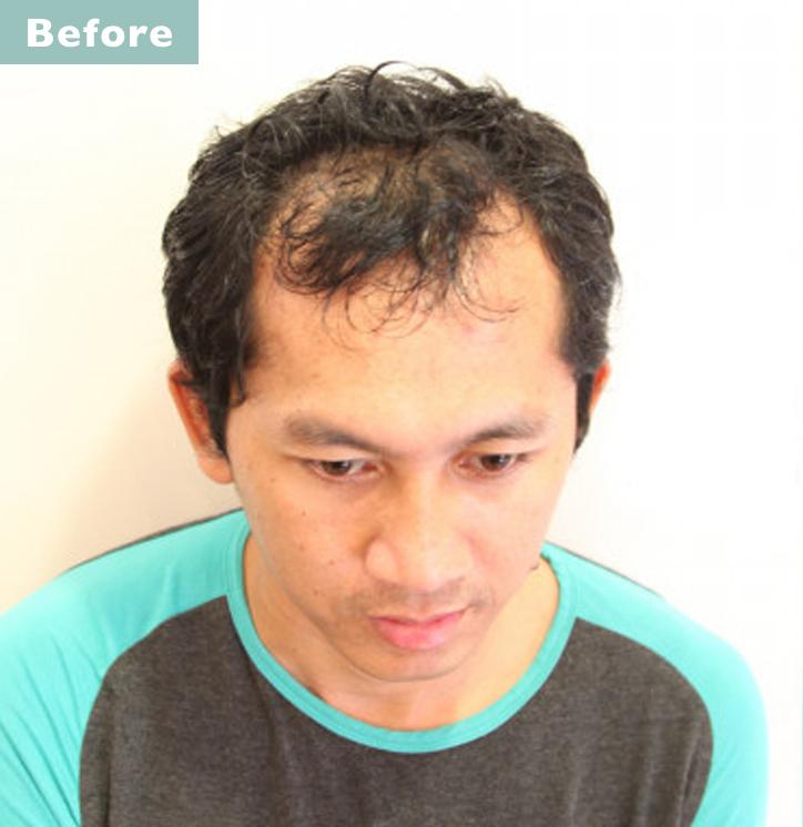 【プロが監修】薄毛をカバーできる髪型に変身!ハゲのタイプ別ヘアカタログ「深いM字ハゲ」 2番目の画像