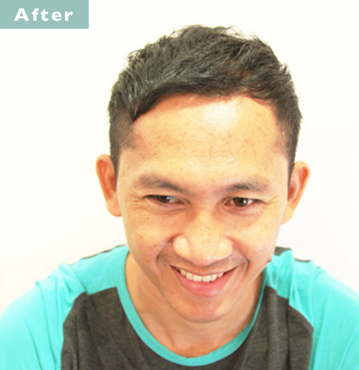 【プロが監修】薄毛をカバーできる髪型に変身!ハゲのタイプ別ヘアカタログ「深いM字ハゲ」 3番目の画像