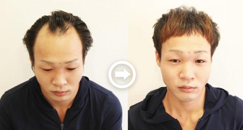 【プロが監修】薄毛をカバーできる髪型に変身!ハゲのタイプ別ヘアカタログ「M文字ハゲ」 1番目の画像
