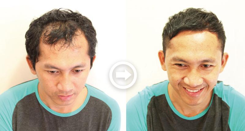 【プロが監修】薄毛をカバーできる髪型に変身!ハゲのタイプ別ヘアカタログ「深いM字ハゲ」 1番目の画像