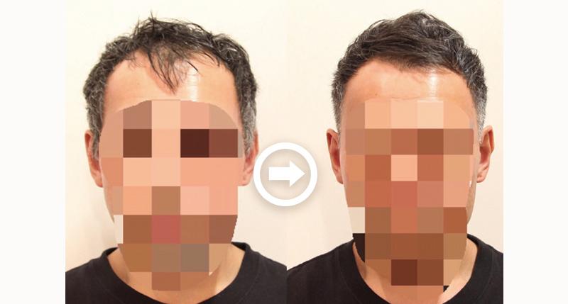 【プロが監修】薄毛をカバーできる髪型に変身!ハゲのタイプ別ヘアカタログ「前髪だけ伸びたM字ハゲ」 1番目の画像