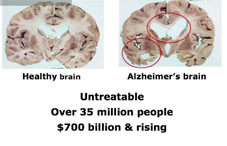 【全文】なぜ「iPS細胞」は破壊的な新技術と呼ばれたのか?――損傷した脳は自力回復できるか 2番目の画像